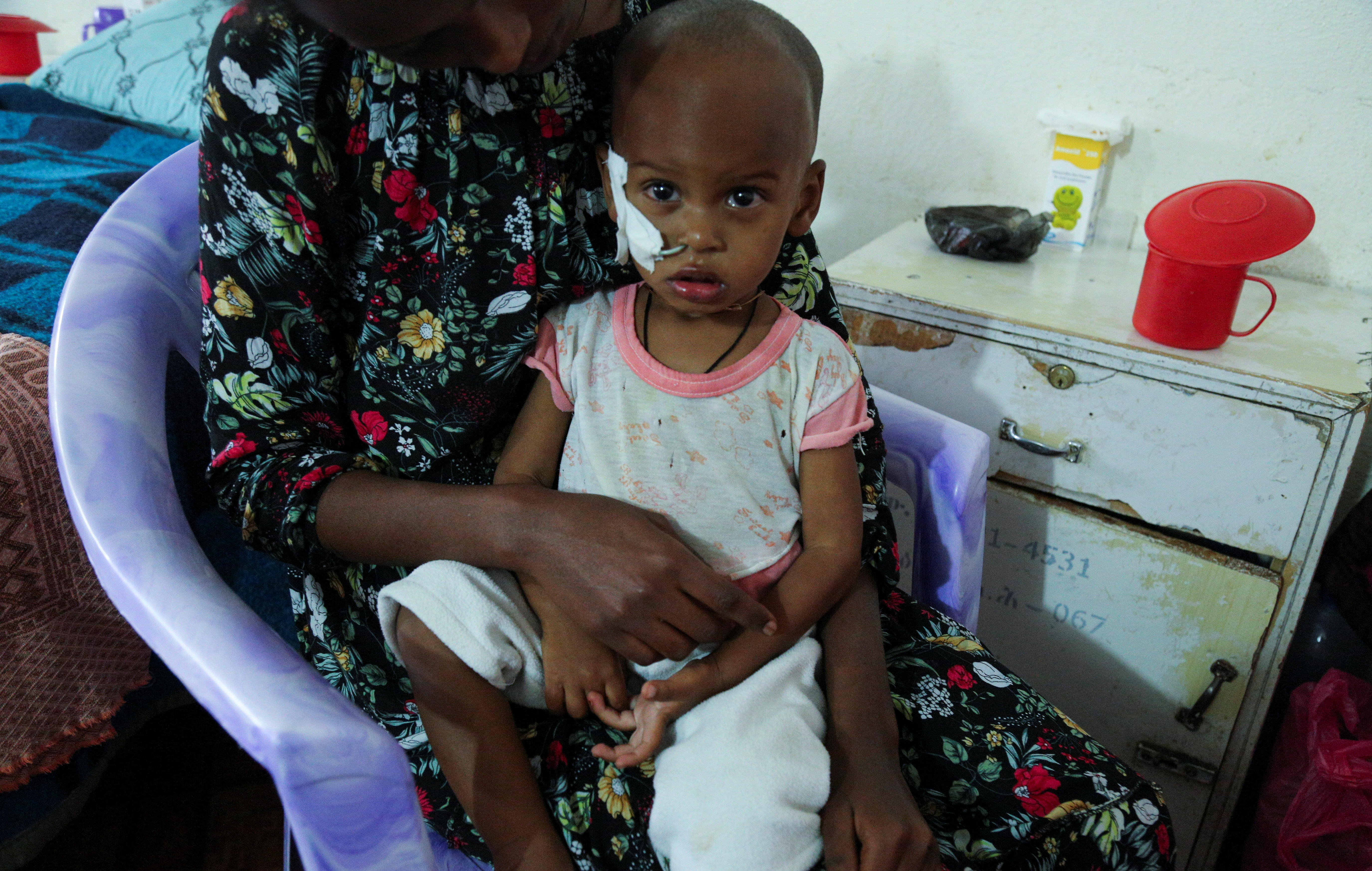 Aamanuel Merhawi, aged one year and eight months, who suffers from severe acute malnutrition, is seen fitted with a nasogastric tube at Wukro hospital in Wukro, Tigray region, Ethiopia July 11 2021.  REUTERS/Giulia Paravicini