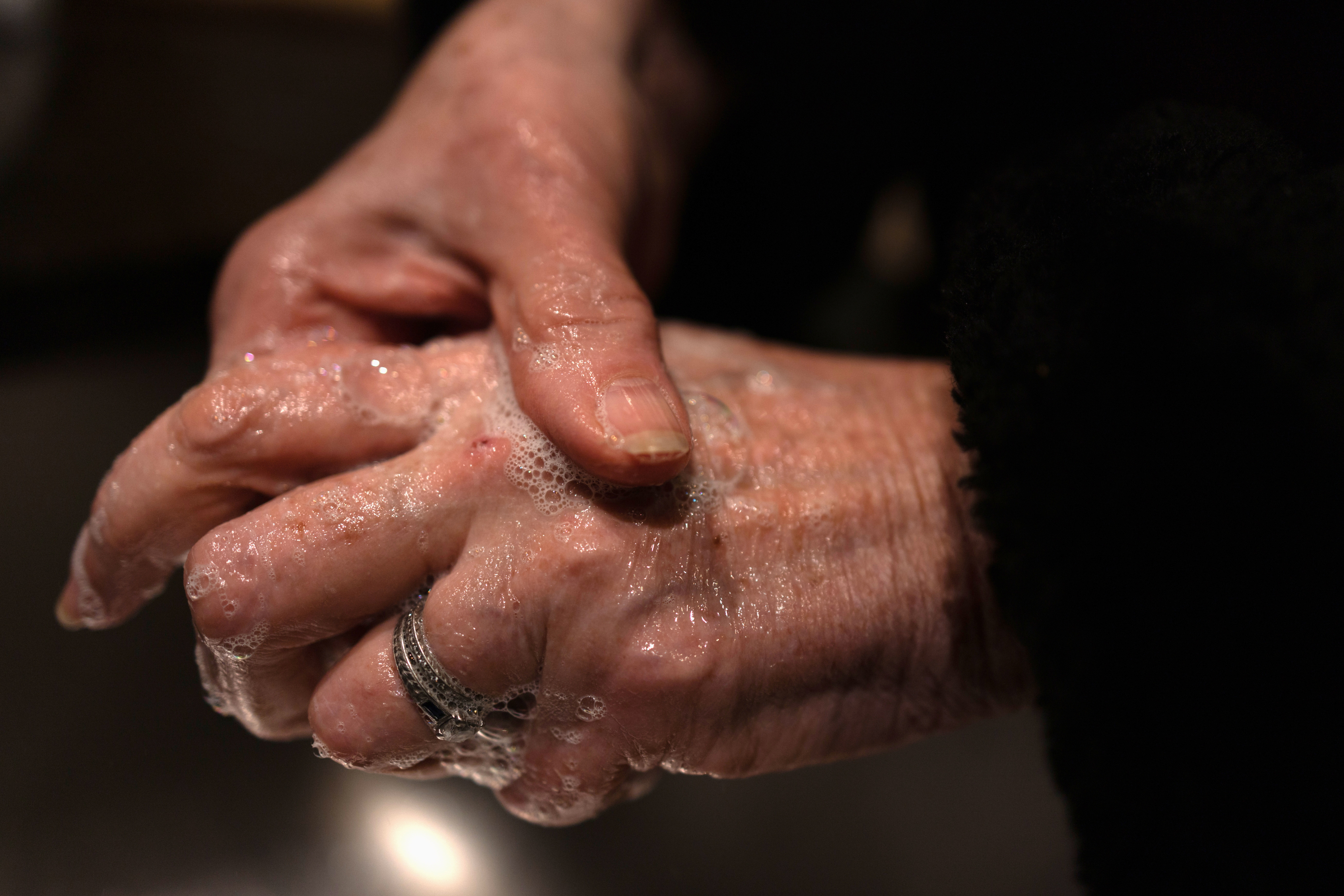 Penny Parkin, 69, who was exposed to COVID-19 on March 23, 2020, washes her hands after visiting her doctor for tests as she continues to suffer from long term effects of the coronavirus disease in Doylestown, Pennsylvania, U.S., March 17, 2021.  REUTERS/Hannah Beier