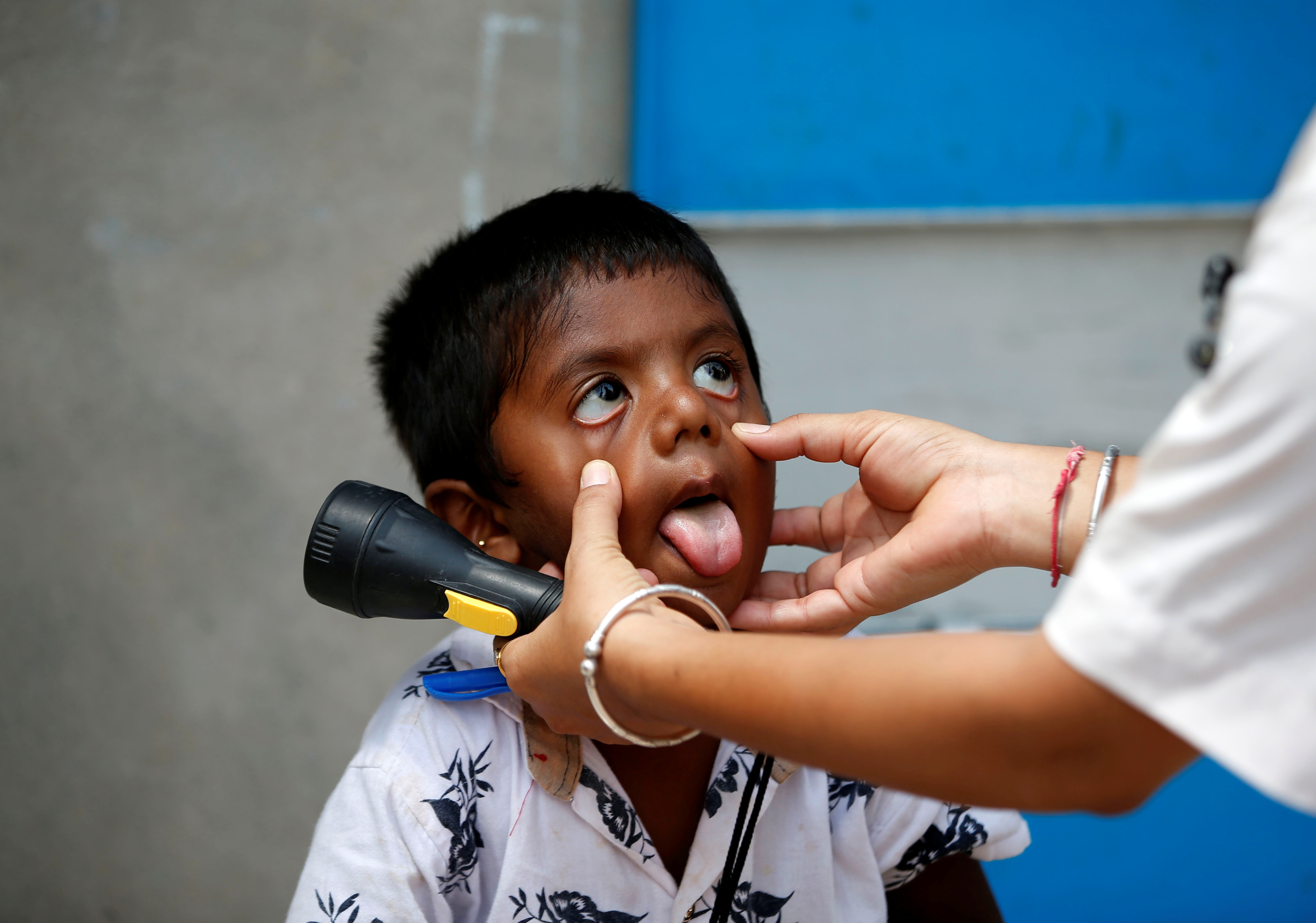 A healthcare worker examines a child during a door-to-door surveillance to safeguard children amidst the spread of the coronavirus disease (COVID-19), at a village on the outskirts of Ahmedabad, India, June 9, 2021. REUTERS/Amit Dave