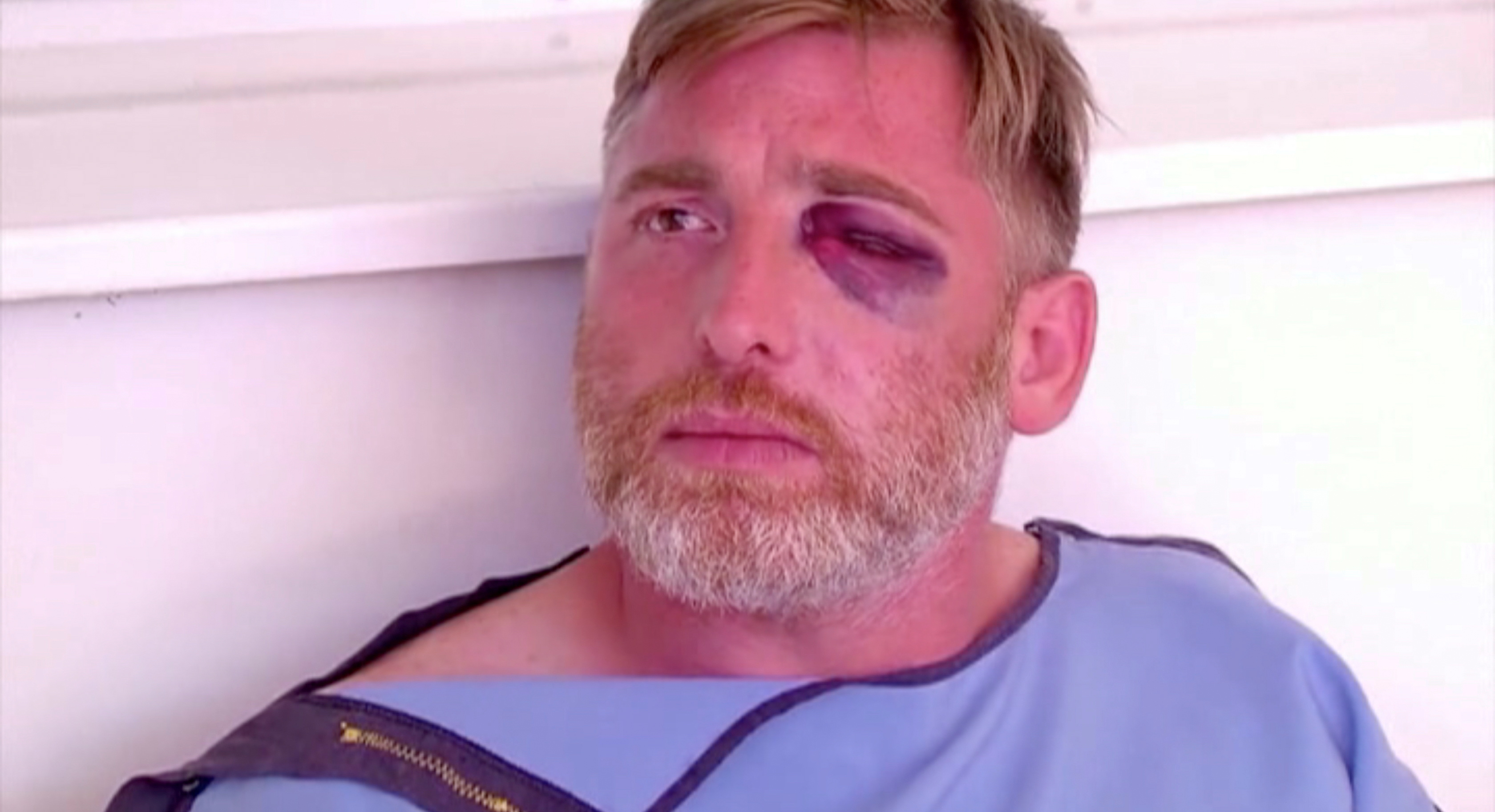 TV channel Pirveli cameraman Alexander Lashkarava is seen after being beaten when the violent group attacked LGBT+ activists and journalists last Monday, in Tbilisi, Georgia in this still image obtained from a video on July 11, 2021. TV PIRVELI/Handout via REUTERS